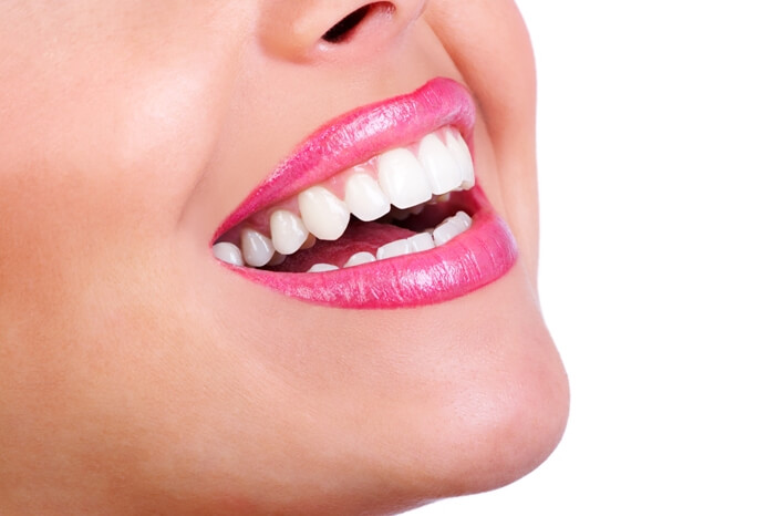 Dalia Dental, Veneers & Laminate